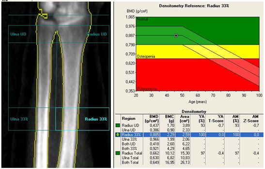 analize pentru osteoporoza